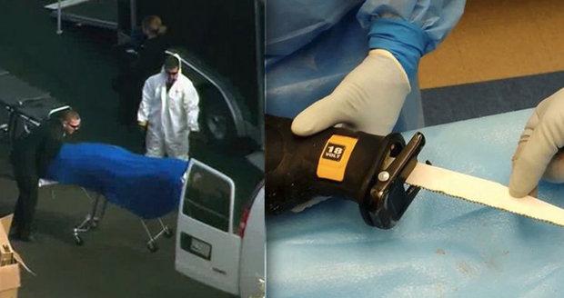 Laboratoř Dr. Frankensteina: Policie v ní našla mužské tělo s přišitou ženskou hlavou