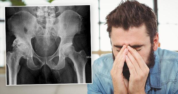 Muž zjistil v nemocnici, že se jeho penis mění v kost a utekl.