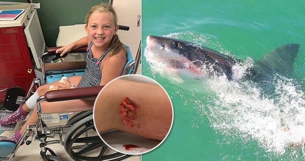 Dívku (9) napadl žralok v dovolenkovém ráji: Nejdřív křičela, pak se objevila krev! líčí šokovaní rodiče