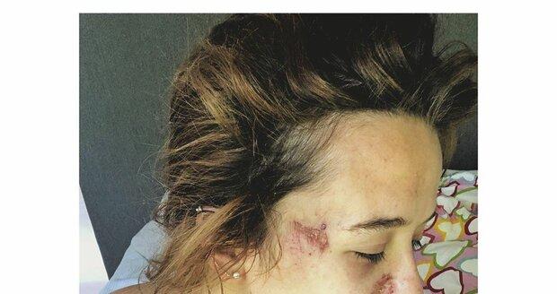 Tamara Klusová se loni po svatbě kamaráda pochlubila ošklivě vypadajícím zraněním.