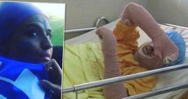Sahar (†29) nemohla na fotbal, protože je žena: Na protest se upálila!