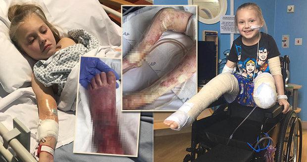 Školačka (11) přišla o obě nohy kvůli děsivé infekci! Neměla potřebné očkování