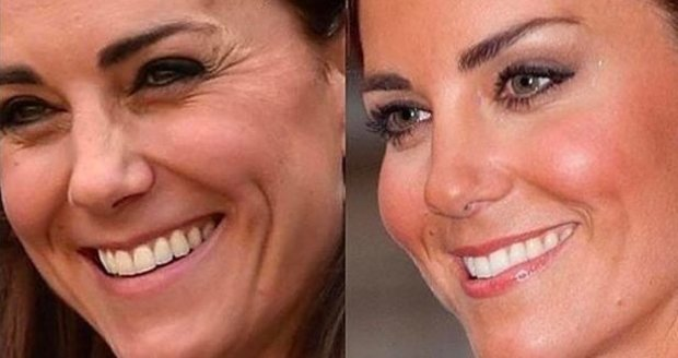 Královská rodina zuří: Fotografie vévodkyně Kate byly zneužity estetickou klinikou, kterou navštěvuje Fergie!