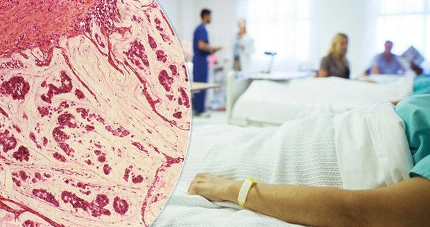 V Česku funguje registr, který hledá osoby s extrémně vysokým rizikem onemocnění kolorektálním karcinomem.