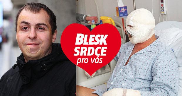 Petr Ilčík (32) z Hodonína utrpěl před 27 lety závažné popáleniny. Uměl se s tím ale vyrovnat.