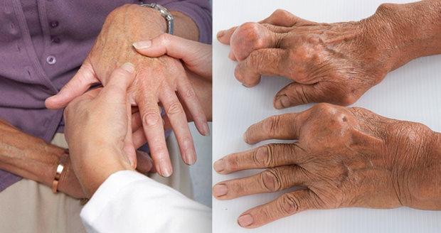 Dna je metabolická nemoc způsobená puriny a kyselinou močovou.