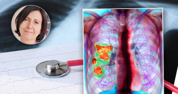 Idiopatická plicní fibróza poškozuje plicní sklípky, jizví je – bere plochu k dýchání, plíce tuhnou a člověk se nemůže nadechnout.