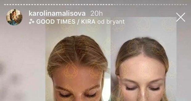 Karolína Mališová přiznala nemoc alopecii.