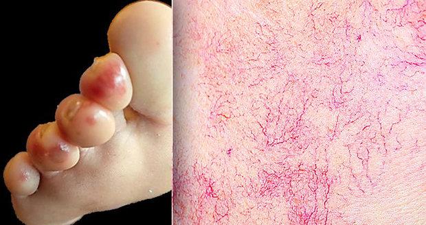 Jaké nemoci se poznají z kůže?