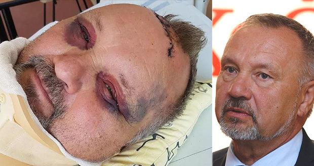Zraněný šéf poslanců KSČM Kováčik pro Blesk: Jsem rád, že žiju. Skalpoval jsem si hlavu o kolík