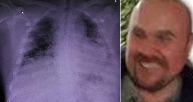 Oblíbený lékař Rastislav (48) zemřel po boji s covid-19: Virus mu zcela zničil plíce