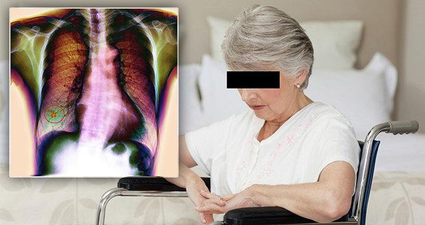 Lékaři u seniorky odhalili pokročilou rakovinu plic. Život jí zachránila  imunologická léčba.(ilustrační foto)