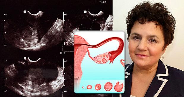 Sausen Sládková o své nemoci neměla ani tušení. Na nádor vaječníků ve třetím stádiu se přišlo náhodou.