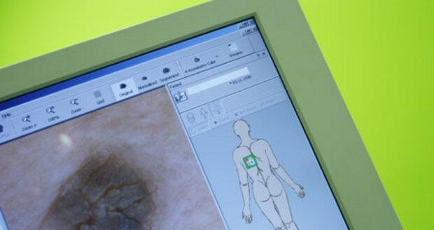 Na klinice Asklepion ukládají lékaři výsledky vyšetření do počítače a porovnávají znaménka při příští kontrole.