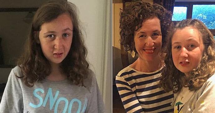 Baculaté dospívající fotografie