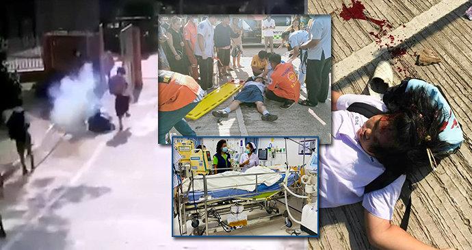Dívka (10) bojuje o život na JIP, zasáhla ji zbloudilá rachejtle z pohřebního ohňostroje!