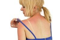 Celý víkend na slunci: Co teď s pokožkou?