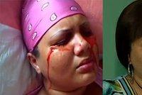 Vzácná choroba  Dívka pláče a potí krev 6a0daaf189