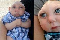 Chlapečkovi bez části lebky dávali pár dní života. Nyní oslavil 1. narozeniny