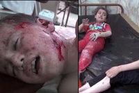 Uplakané a zakrvácené děti, to je výsledek náletů Ruska v Sýrii. Nezabily jediného teroristu
