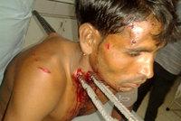 Motorkář to napálil do kamionu: Probodly ho železné pruty