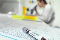 Lékaři bijí na poplach: Chybí dárci krve. Situace bude kritická, varují