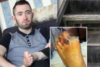 Pozor na eskalátory! Michaelovi (27) amputovaly jezdící schody prsty