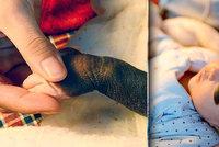 Miminko se narodilo jako dalmatin: Kvůli vzácné nemoci má po těle skvrnky
