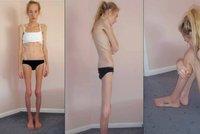Vážila 29 kg! Anorektičce dávali lékaři 48 hodin života