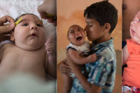 V olympijském Riu řádí nebezpečný virus: Rodí se kvůli němu zdeformovaná miminka