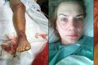 Kráska se vybourala v Thajsku a málem přišla o nohu: Kvůli chvilce nepozornosti dluží milion!