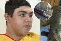 Dětskému kuřákovi e-cigareta vážně popálila nohu: Vybuchla mu v kapse