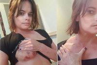 Odvrácená strana internetových seznamek: Žena ukázala modřiny po znásilnění