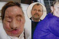 Chirurg Pomahač ženě transplantoval obličej, její tělo ho odmítalo, teď promluvila