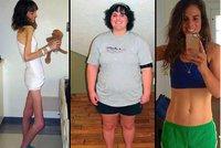Rodiče už pro ni chystali pohřeb: Anorektička pak přibrala 70 kilogramů!