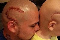 Táta si nechal vytetovat na hlavu jizvu syna, který bojuje s rakovinou mozku