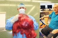 Zlínští lékaři vyoperovali muži obří nádor: Vážil 27 kilo!