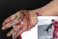 Agresivní pitbull útočil na vše živé: Pohryzal přes 20 lidí, včetně dítěte (8)