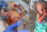 Statečná holčička, která se narodila bez kůže, oslavila první narozeniny!