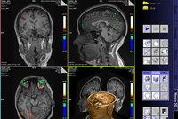 Sken mozku odhalí kriminálníky ještě před zločinem