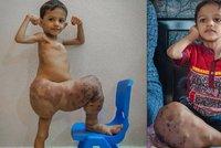 Chlapeček (3) trpí vzácnou nevyléčitelnou chorobou: Jeho noha je den ode dne větší