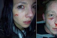 Se slovy »ty jedna bílá mr*ko« na ně měli zaútočit: Manželé sami musí na policii