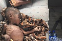 Svět je v největší krizi od 2. světové války. OSN: 20 milionů lidí hladoví
