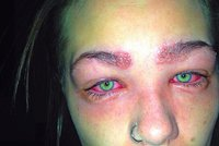 Dívka (16) si chtěla obarvit obočí. Skončila s popáleninami a málem oslepla