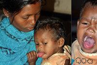 Dívenka (1,5) trpí vzácnou nemocí: Nádor v jazyku ji pomalu dusí k smrti