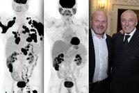 Naděje pro nemocné jako Karel Gott: Takhle rakovina zmizí za 3 měsíce