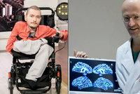Transplantace hlavy je jeho jediná naděje na přežití: Je to podle lékařů možné?