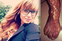 Maruška (23) bojuje s nevyléčitelnou nemocí kůže: Jediná v Česku trpí vzácnou formou Ichtyózy