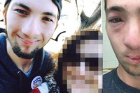 Alergik mohl zemřít kvůli šikaně: Spolužák mu pomazal obličej burákovým máslem