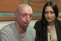 Doufám, že shoříš v pekle: Vzkázal přítelkyni, která ho polila kyselinou